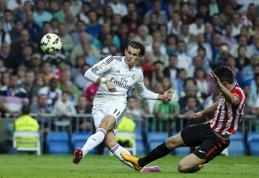 """""""Real"""" patvirtino G. Bale'o traumą"""